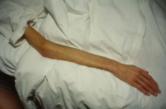 Gilles' arm, Paris, 1993